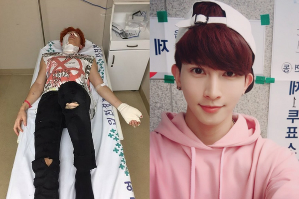 Video of U-Kiss Kiseop Burn Accident Surfaces